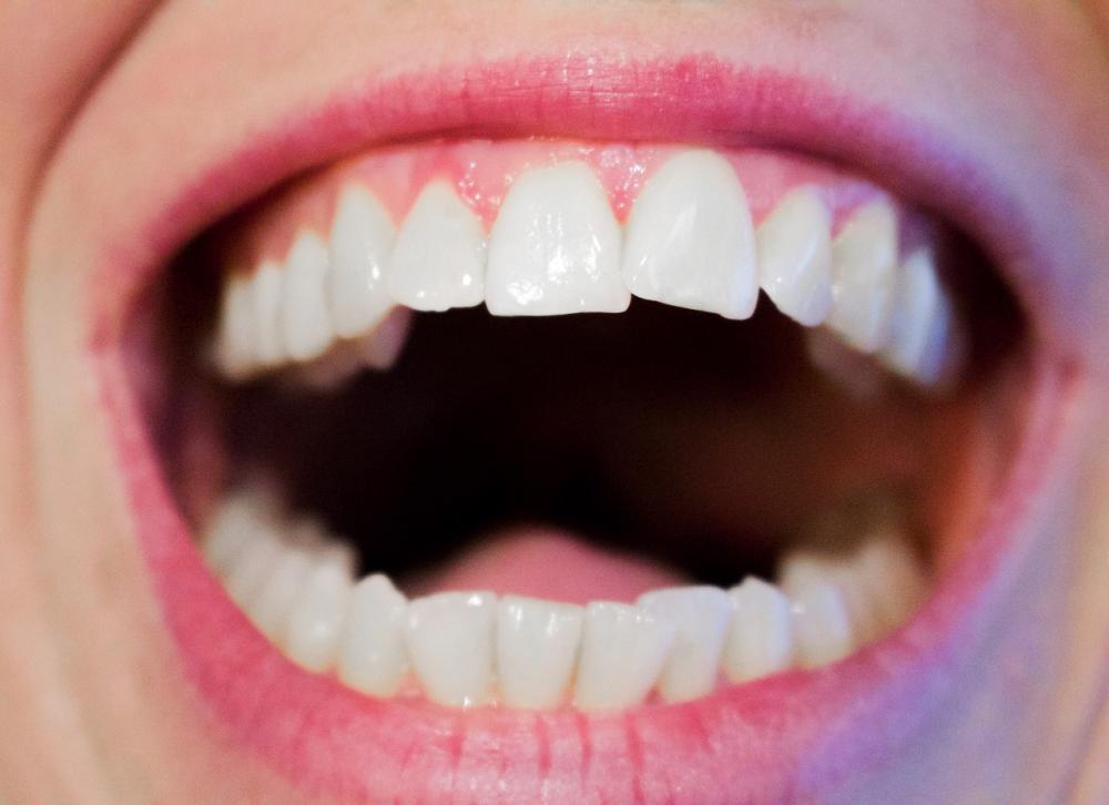 Foto zum Artikel mit dem Thema Zähne und...